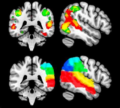 Literature review of autism spectrum disorder symptoms